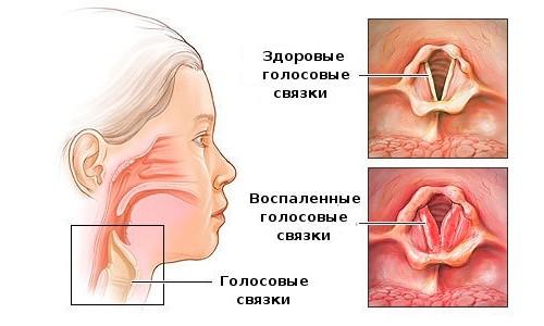 for adults Antibiotics laryngitis in