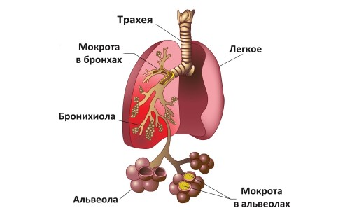 symptoms of atypical pneumonia in adults, Human body