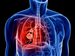 adults in for Antibiotics laryngitis
